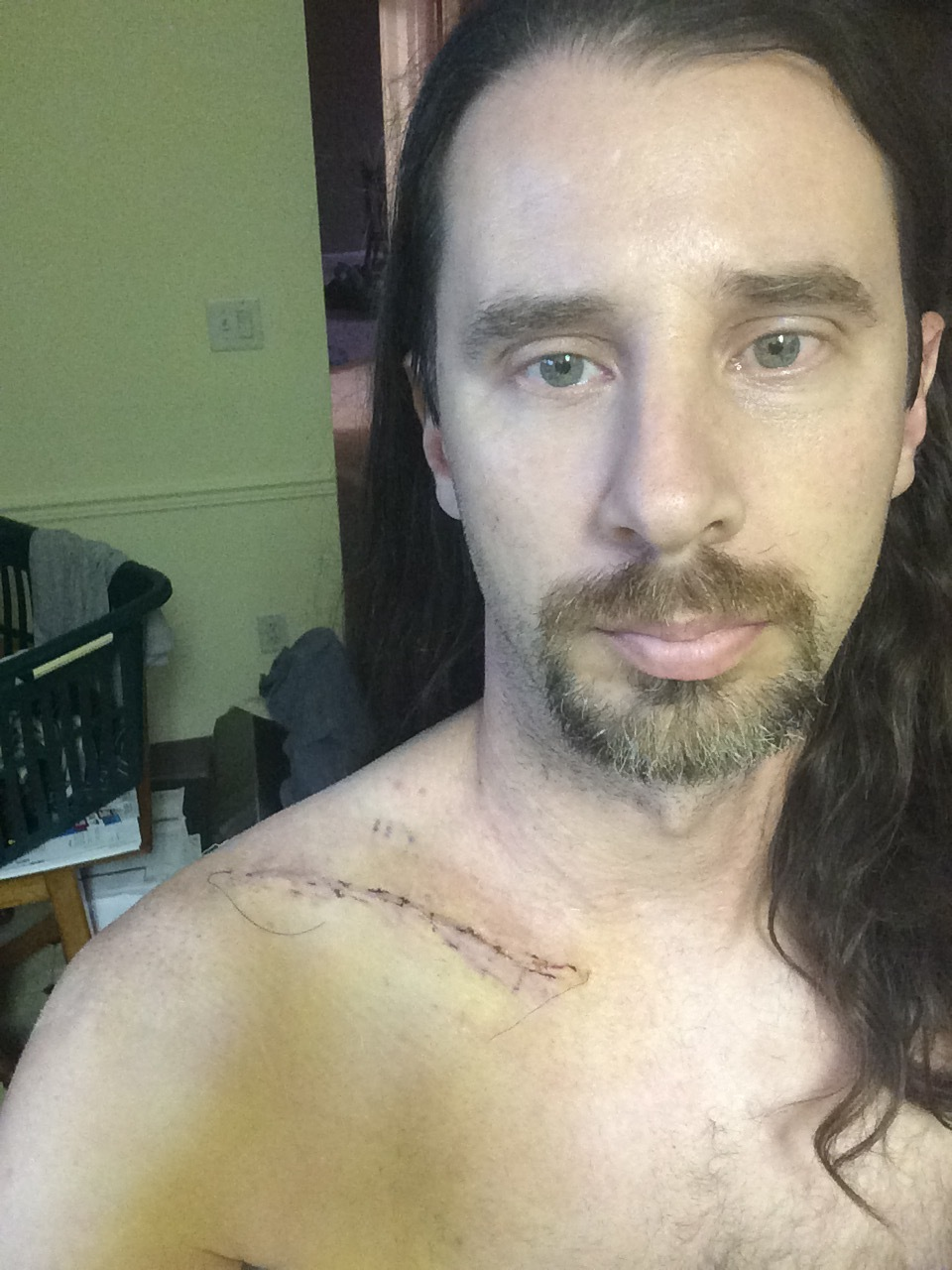 The day I took the bandages off from my collar bone surgery, right before I left for Iowa. No kayaking for me.