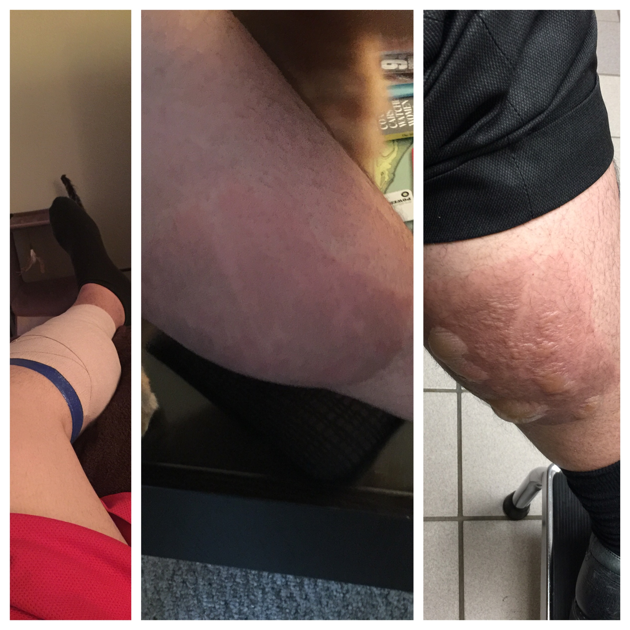 On the left  - the ice pack being applied.   In the Middle  - the morning after... it felt like a sun burn.  the Right side  - roughly 12 hours after applying ice... it began to bubble and get crazy. I went to the doctor and it go SO MUCH FUCKING WORSE.
