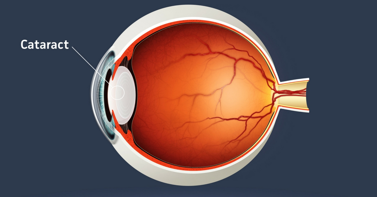 Image: cross section of an eyeball showing were a cataract is located
