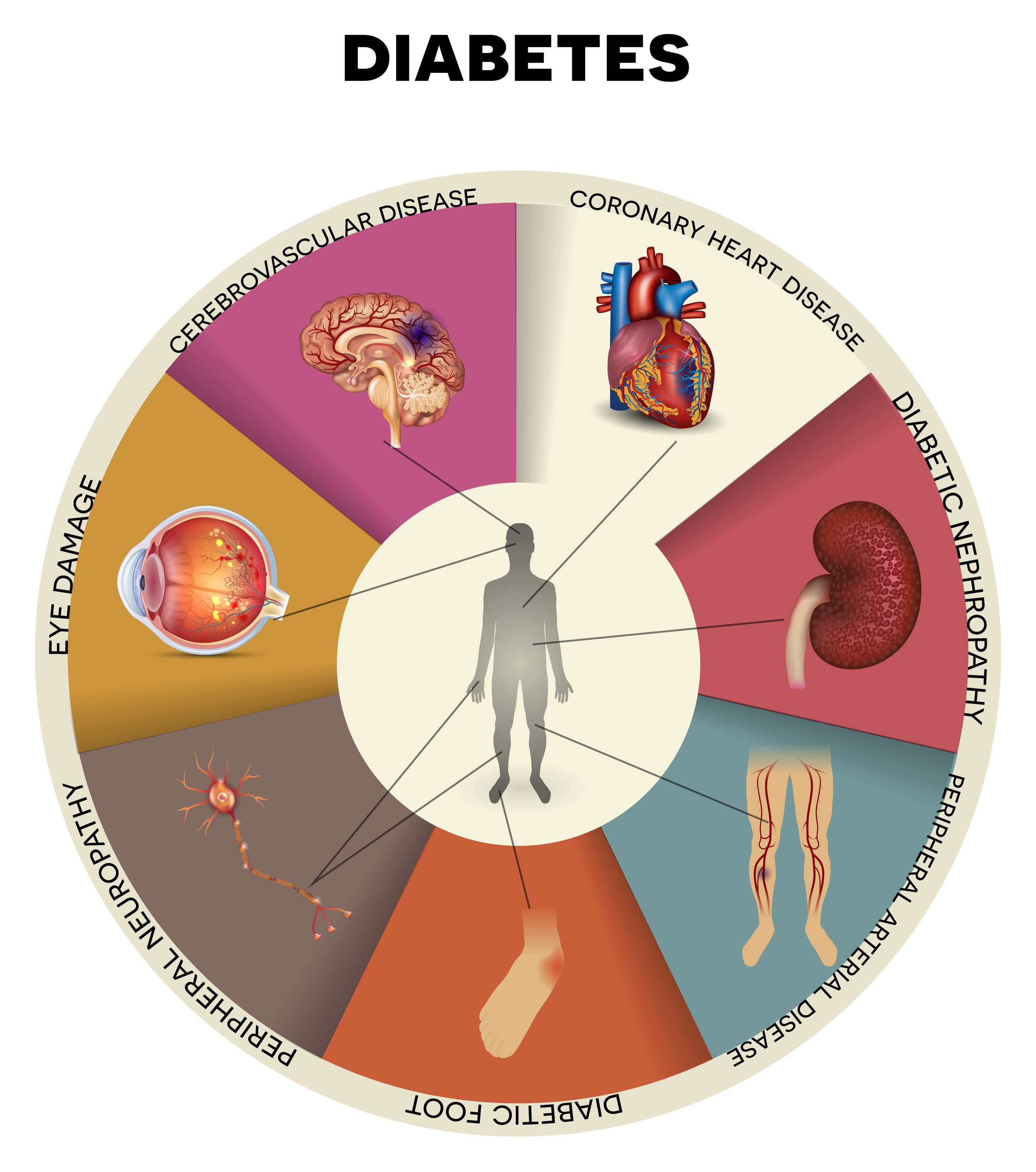 Diabetes medical complication wheel chart