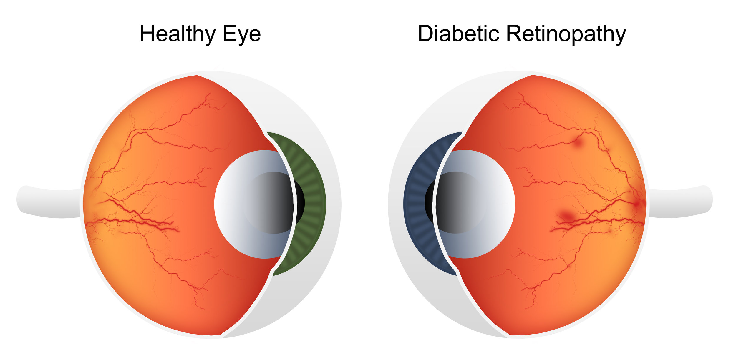 normal eye vs diabetic retinopathy eye