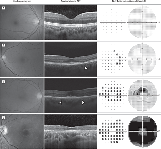 GRaph#1 - Image via:Melles RB, Marmor MF. The risk of toxic retinopathy in patients on long-term hydroxychloroquine therapy. JAMA Ophthalmol 2014;132:1453–60.