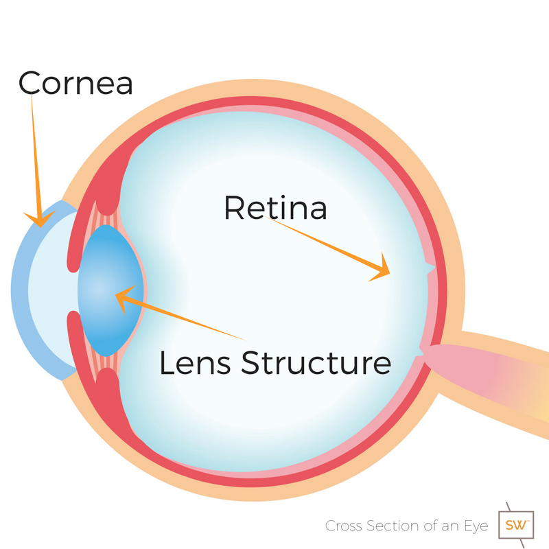 Cross section of an eye showing the location of the retina, the cornea,the lens structure and where a cataract will develop.