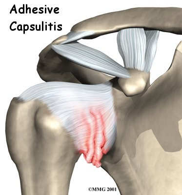 Image borrowed from kneeandshouldersurgery.com