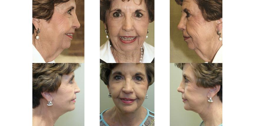 Face & Neck Lift Patient 1
