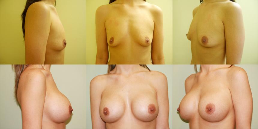 Breast Augmentation Patient 1