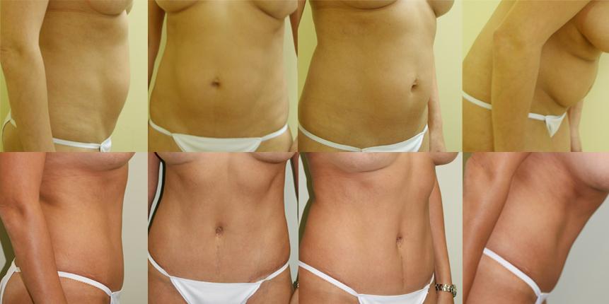 Abdominoplasty Patient 1