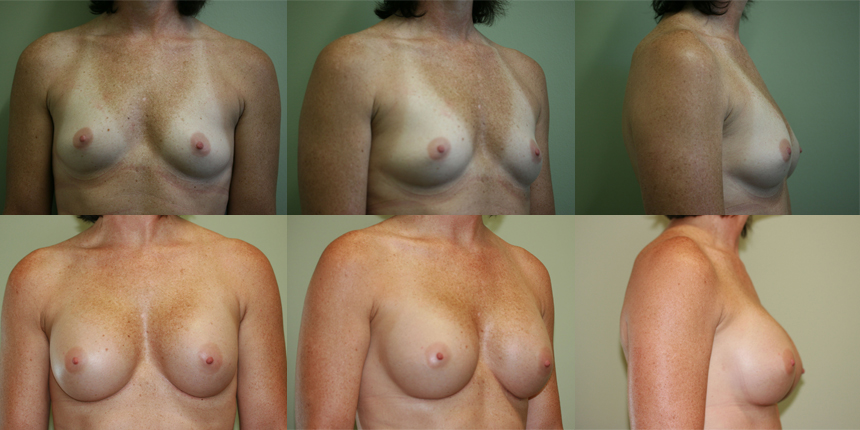 Breast Augmentation Patient 2