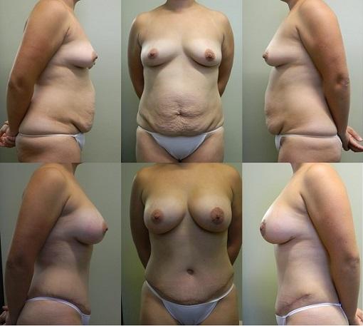 Breast & Body Patient 1