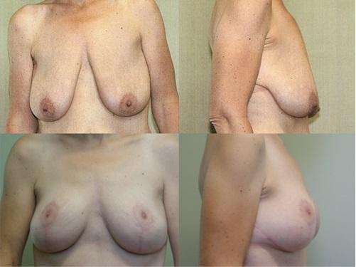 Breast Lift Patient 1
