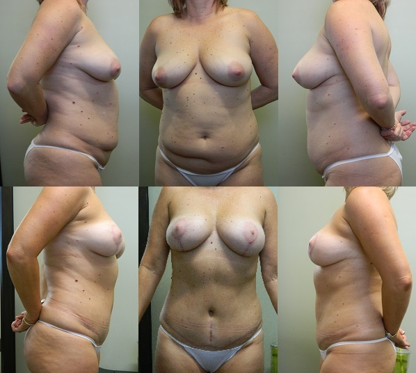 Breast & Body Patient 2