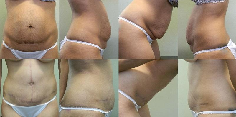 Abdominoplasty Patient 2