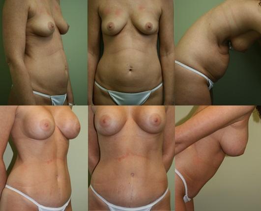 Breast & Body Patient 3