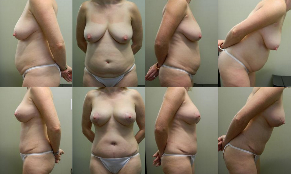 Breast and Body Patient 4