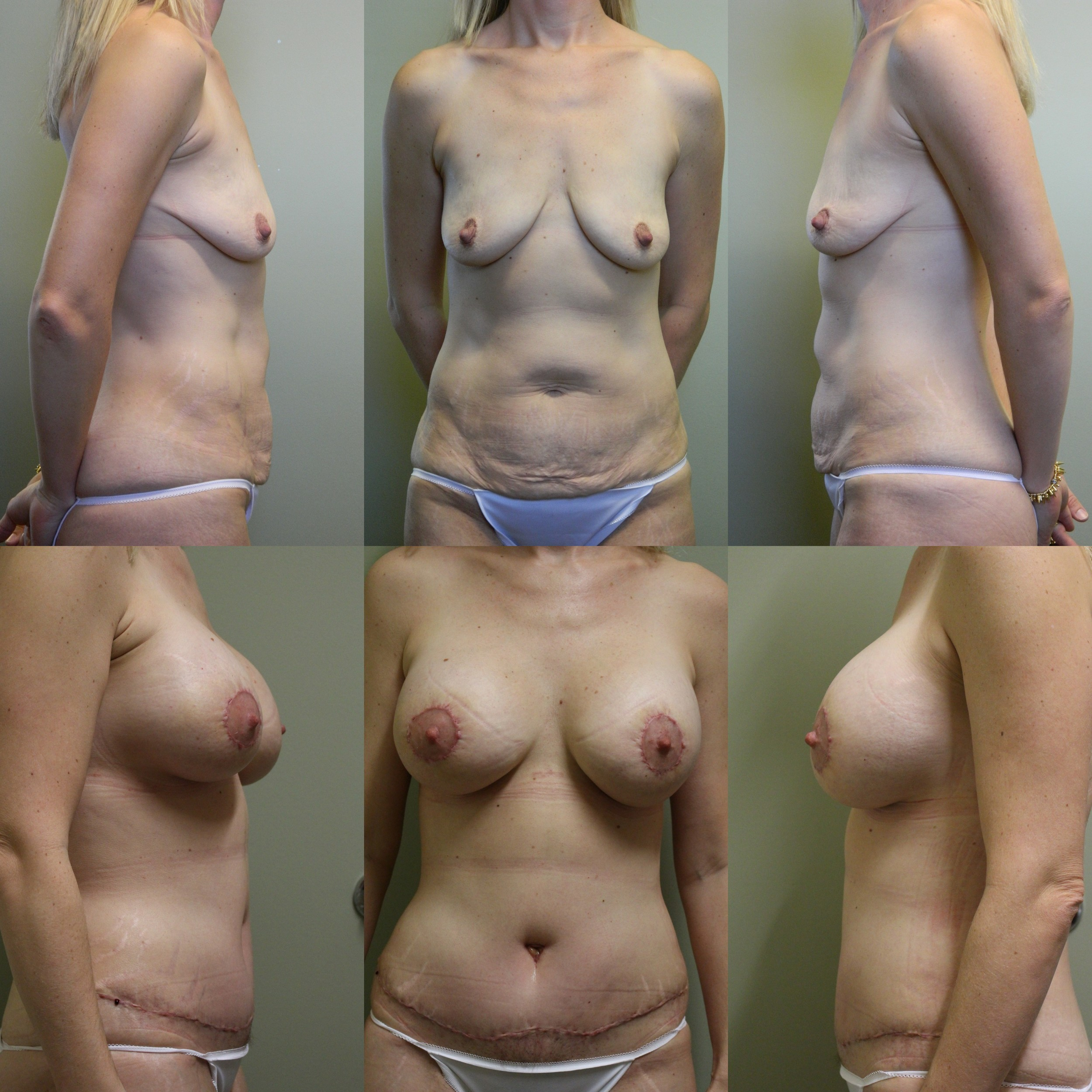 Breast & Body Patient 5
