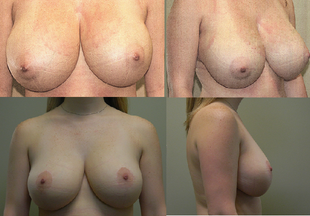 Breast Reduction Patient 2