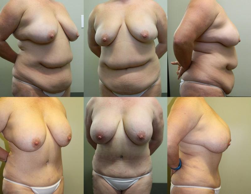 Breast & Body Patient 6