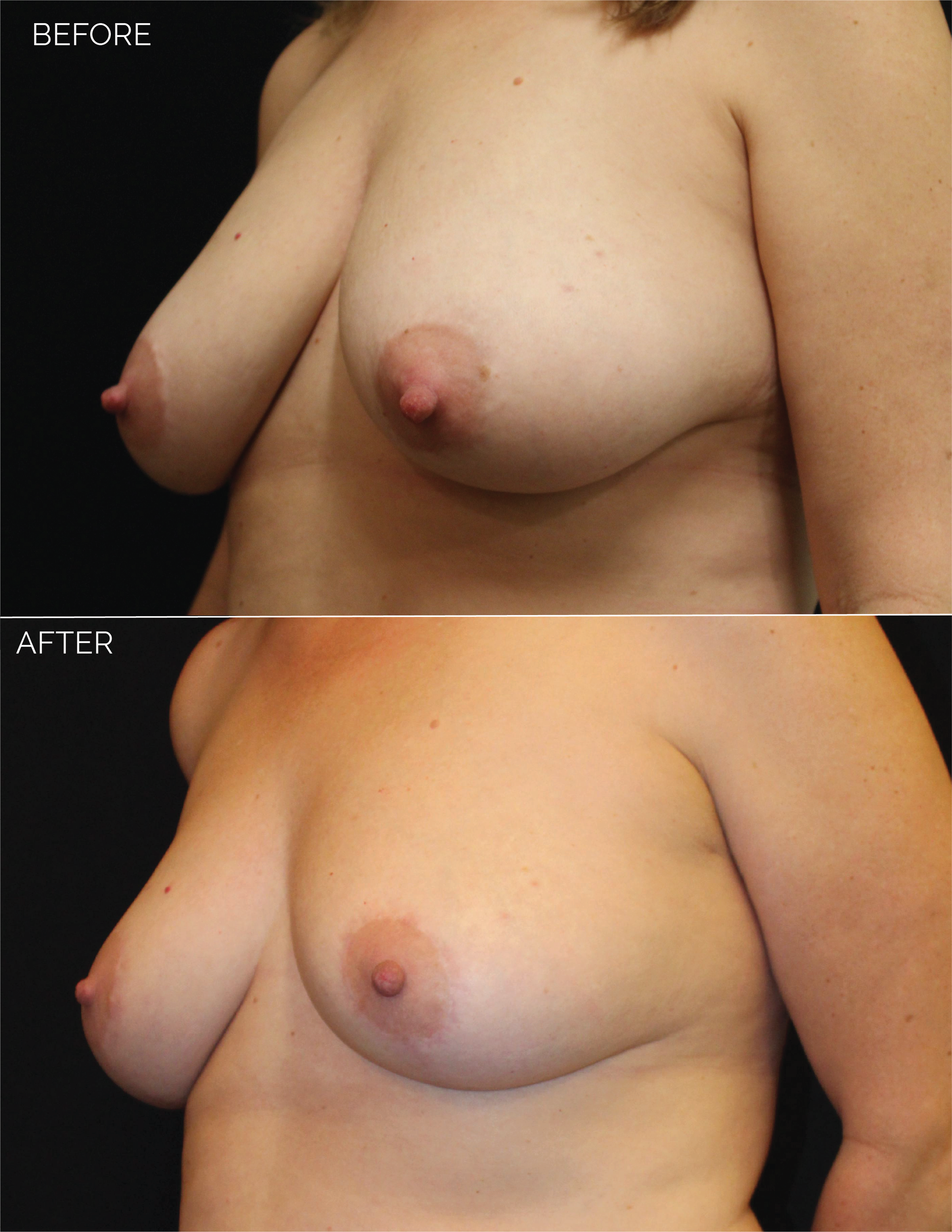 BREAST LIFT - CHART #4685 - 10 MONTHS POST OP-07.png