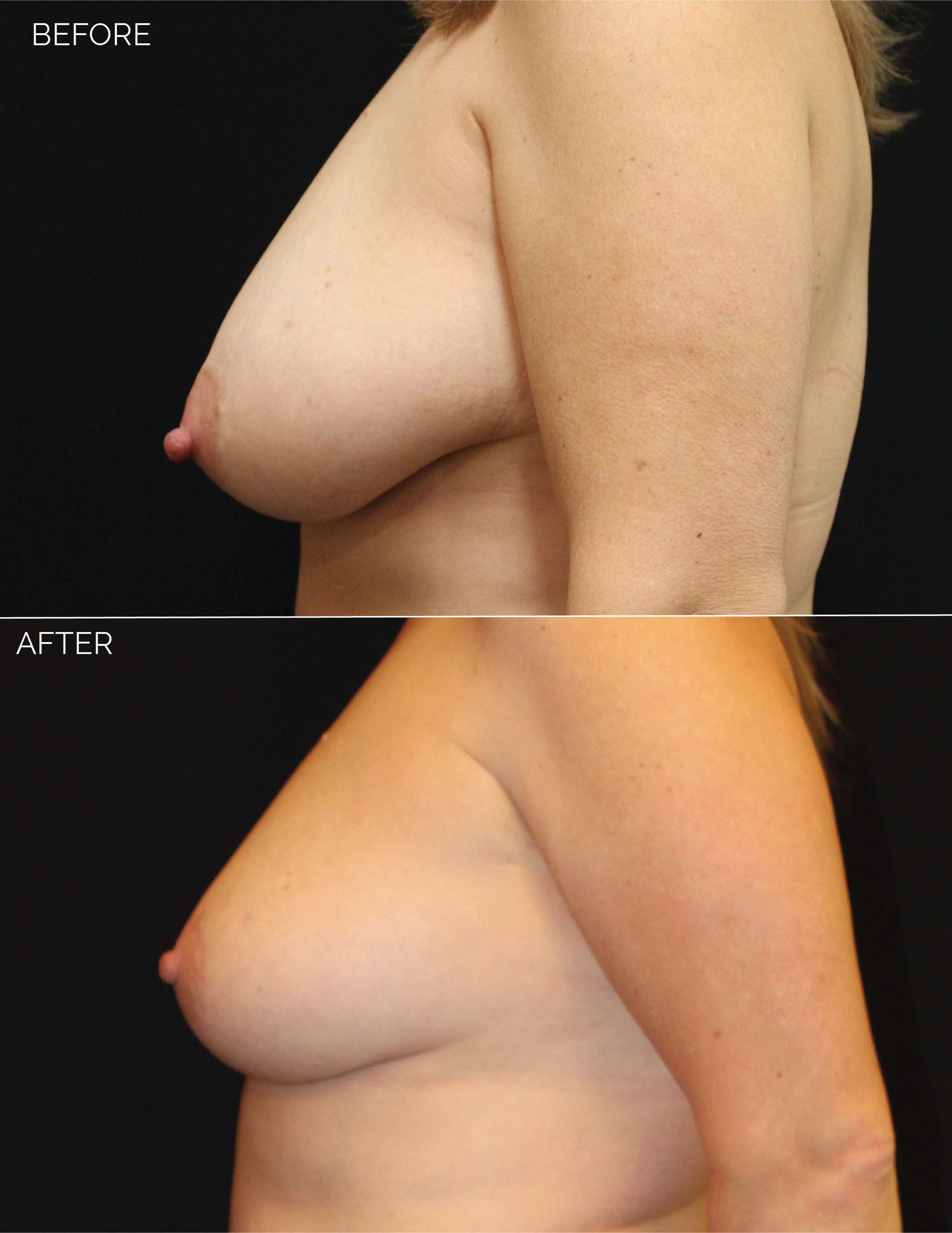 BREAST LIFT - CHART #4685 - 10 MONTHS POST OP-08.png