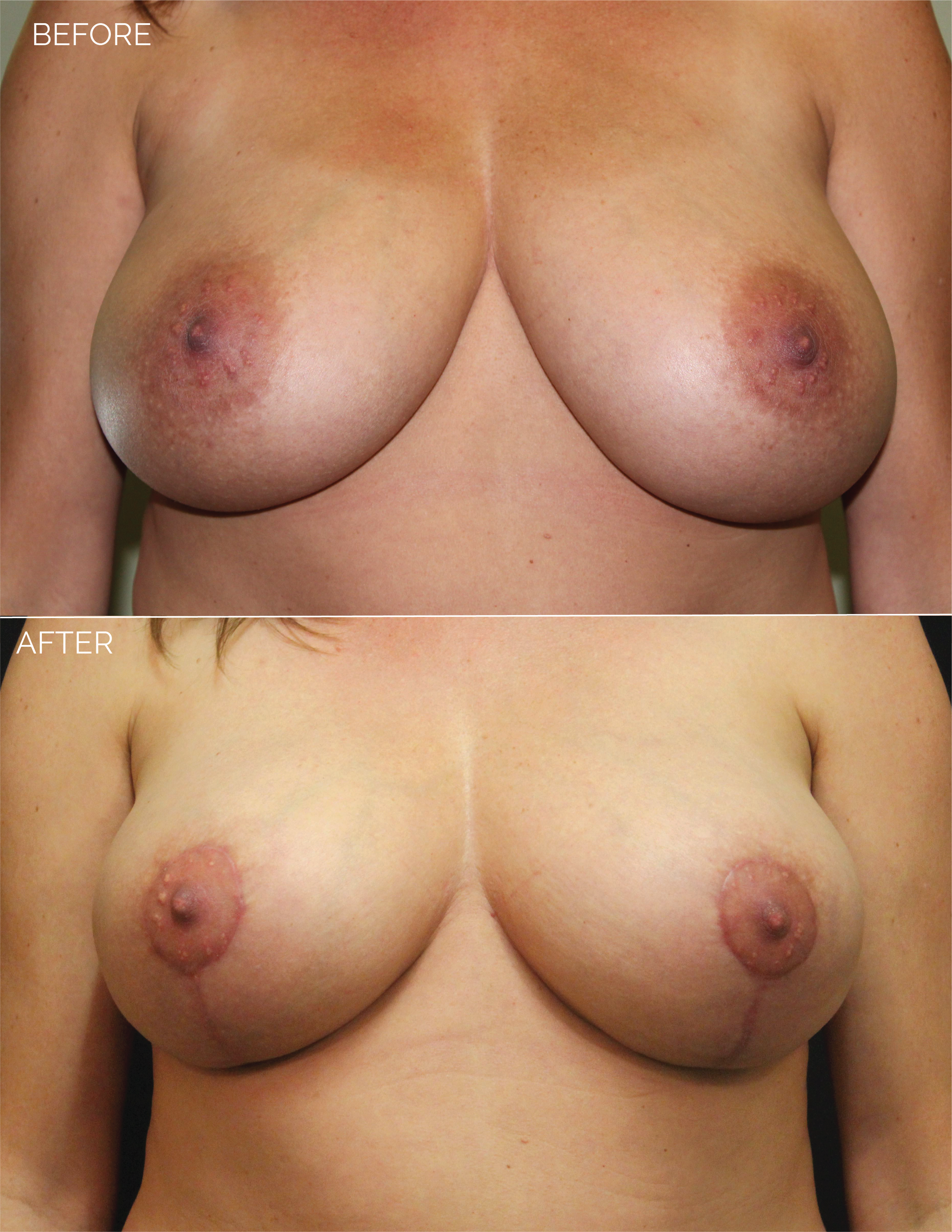 BREAST LIFT - CHART #4400 - 1 MONTH POST OP-06.png