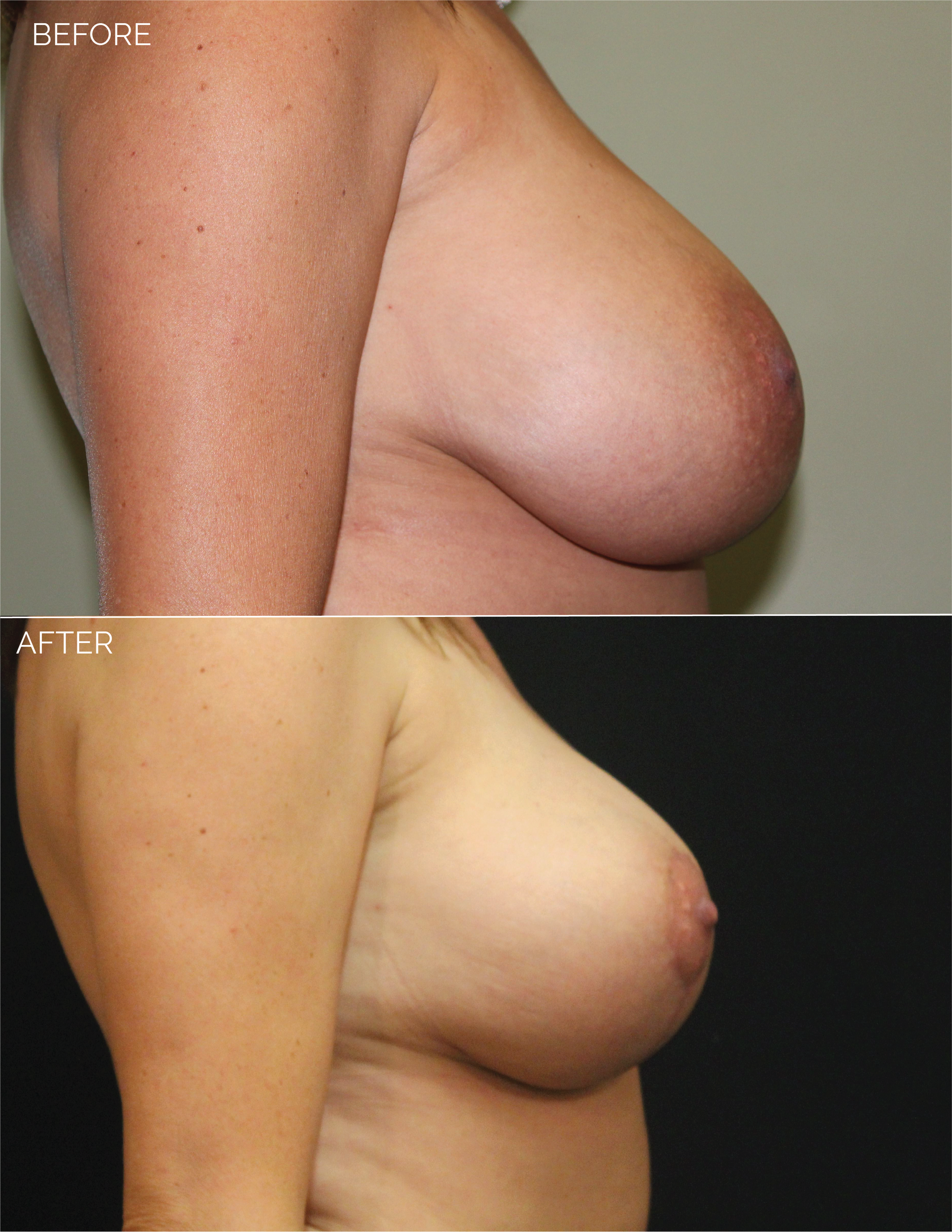 BREAST LIFT - CHART #4400 - 1 MONTH POST OP-10.png