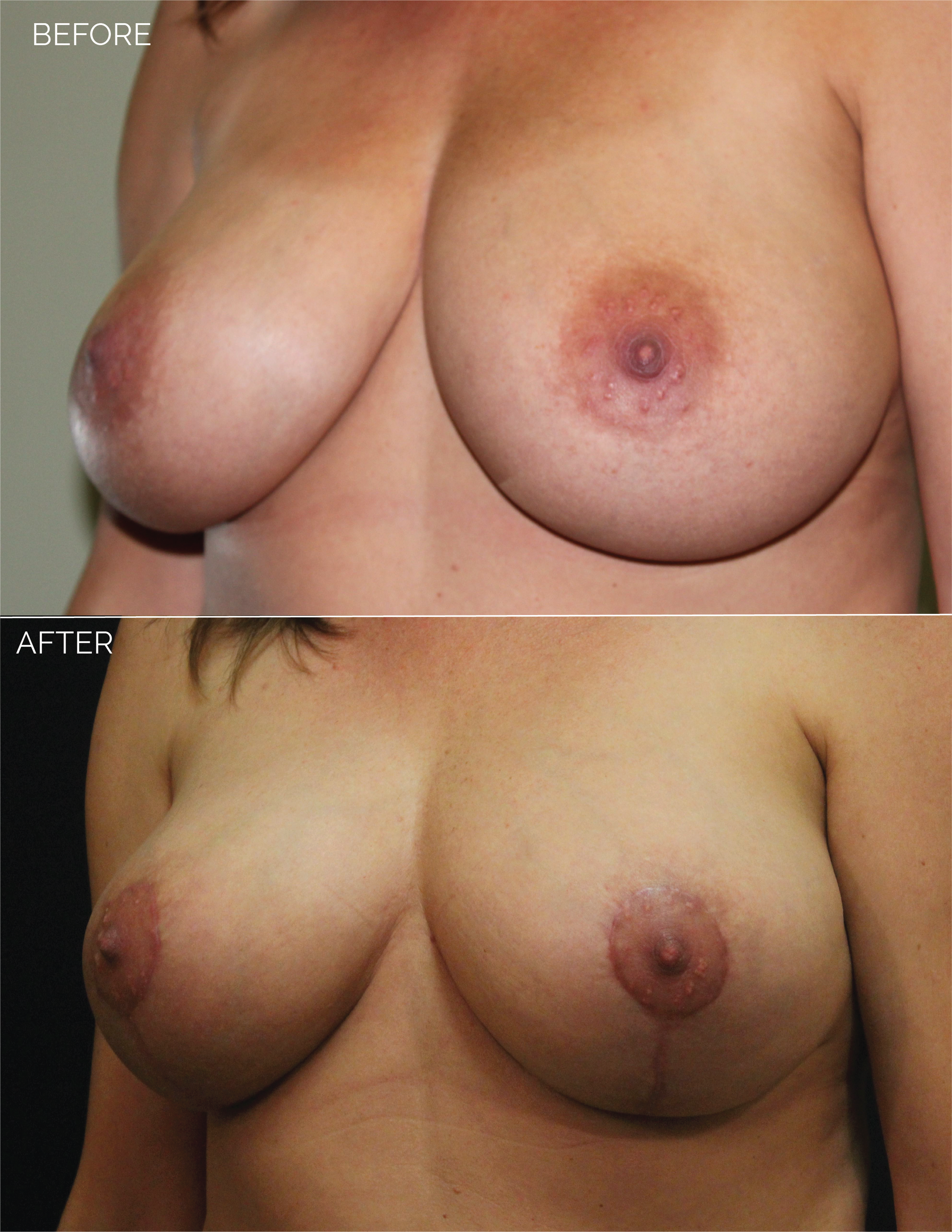 BREAST LIFT - CHART #4400 - 1 MONTH POST OP-07.png