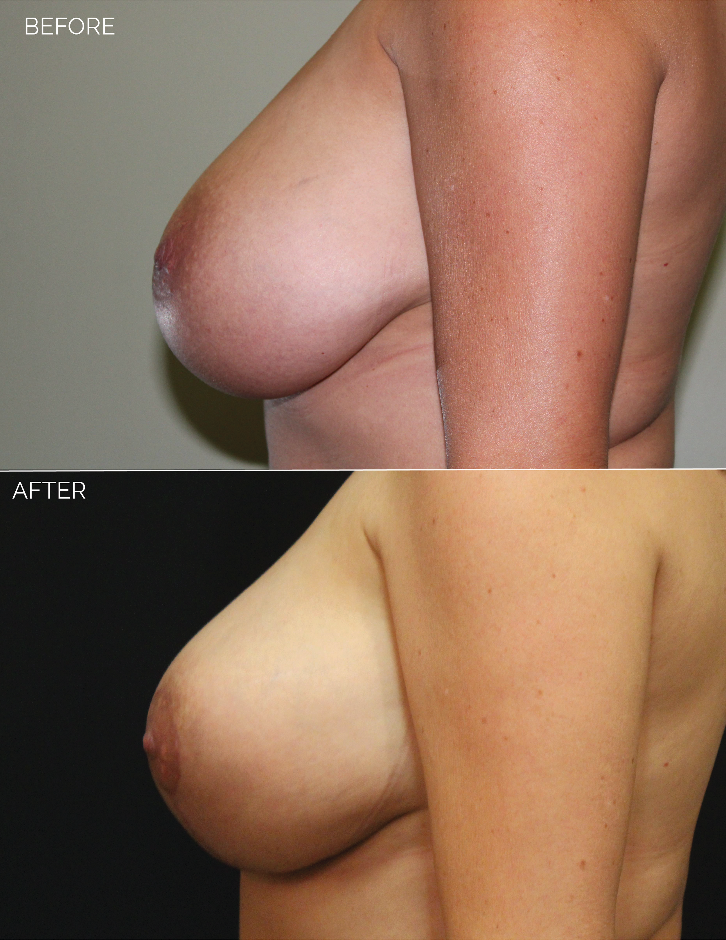 BREAST LIFT - CHART #4400 - 1 MONTH POST OP-08.png