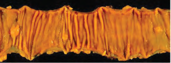 Specimen of surgical resection of small bowel, demonstrating multiple small NETs.