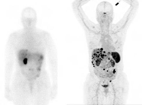A comparison in the same patient between a In111-pentetreotide scan (OctreoScan, left) and Ga68-DOTATATE PET (NetSpot, right). Images courtesy of Hong Song, MD, PhD (Stanford University).