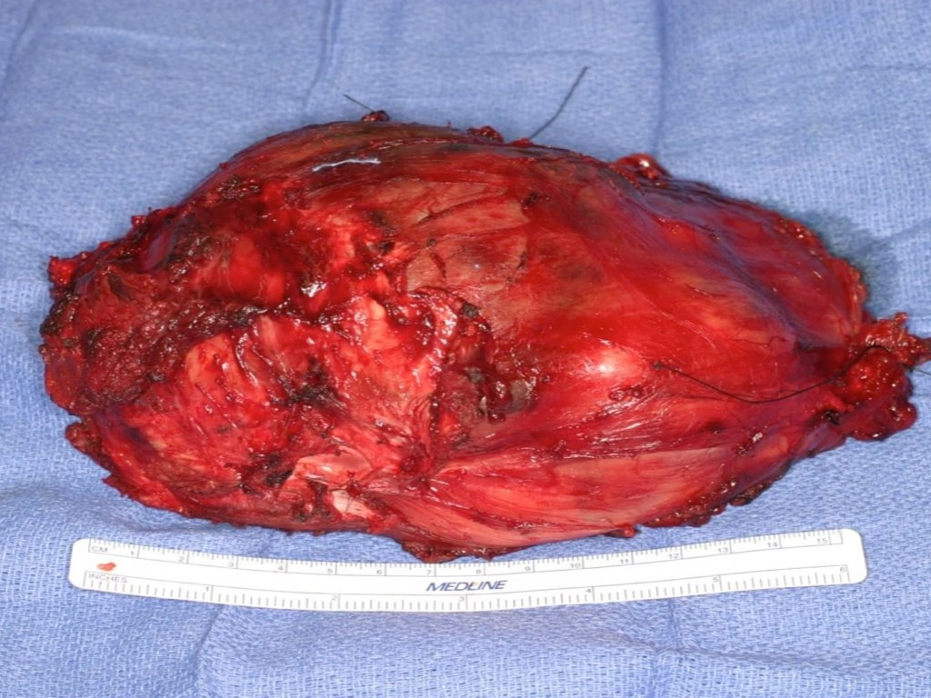 """Tumor after """"wide resection"""", note thin covering of muscle over mass"""