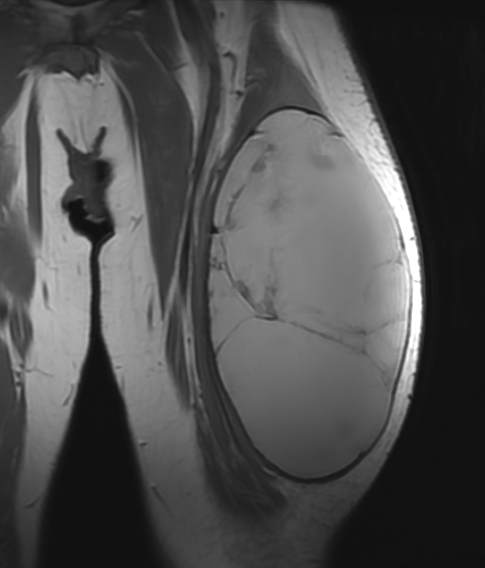 Front view MRI of tumor at time of surgery