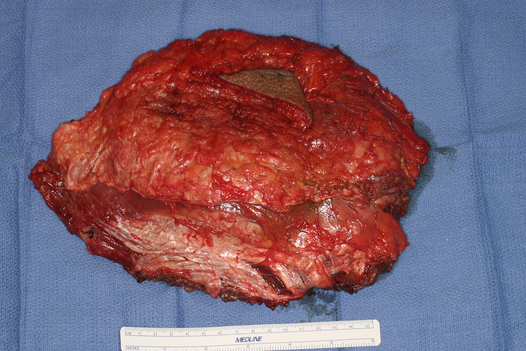Tumor is removed with surrounding layer of muscle