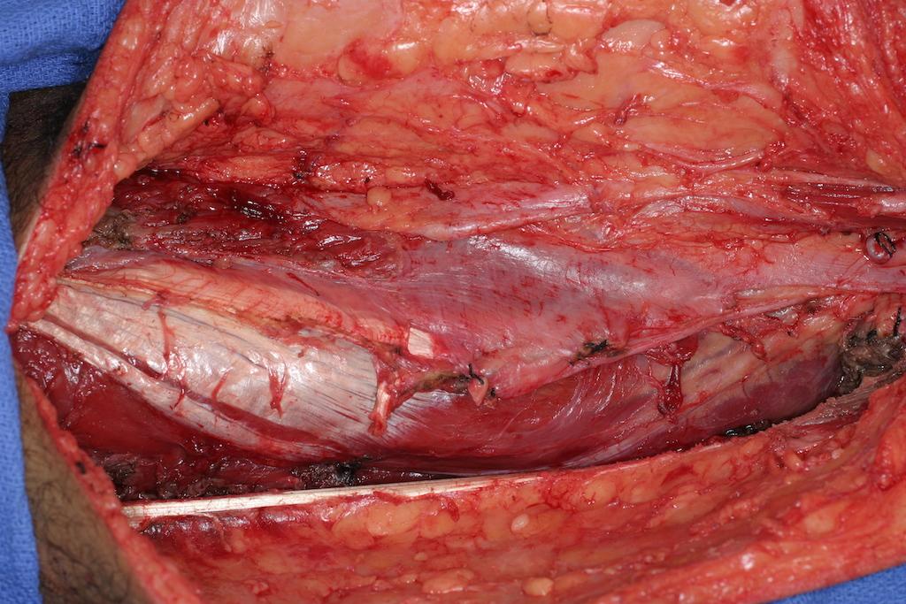 Remaining quadriceps are sutured together