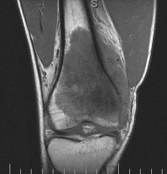 Front view MRI image showing the tumor extending up the femur