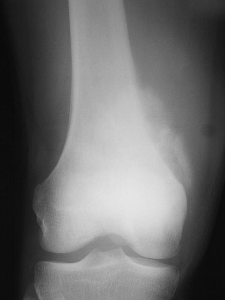 Distal femurX-ray showing increased density of bone