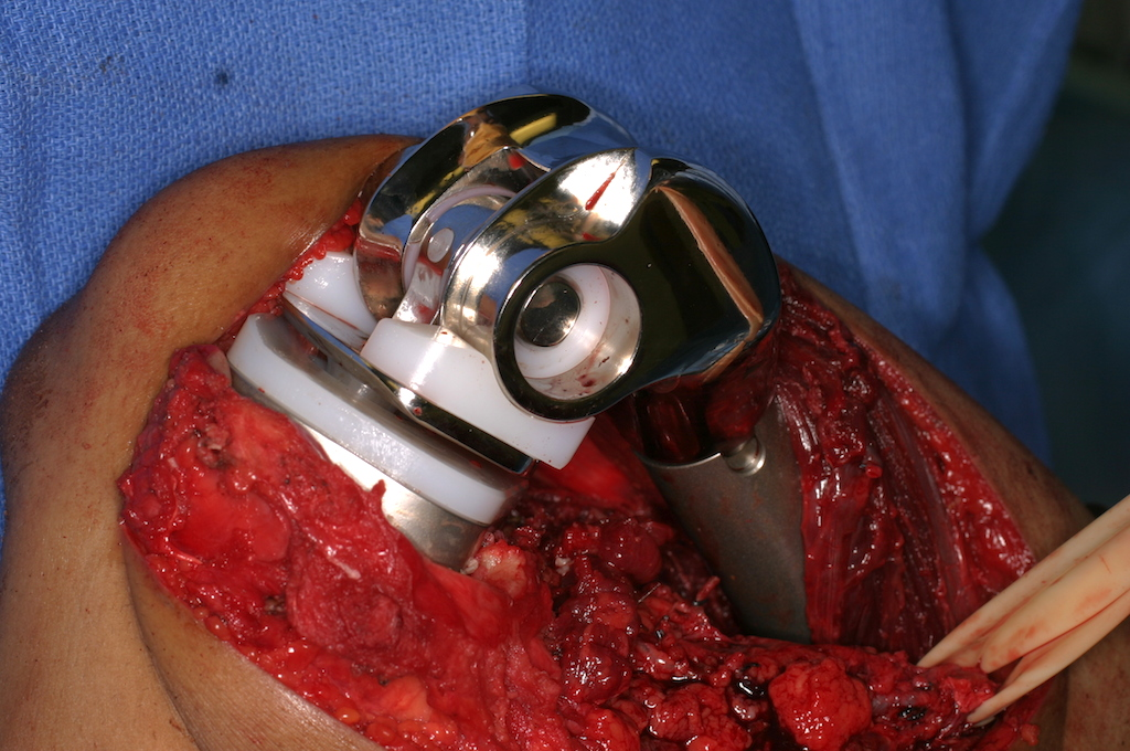 Assembled prosthesis implanted into femur and tibia