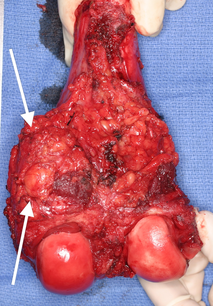The removed bone with layer of muscle and tissue covering portion where the tumor extended outside