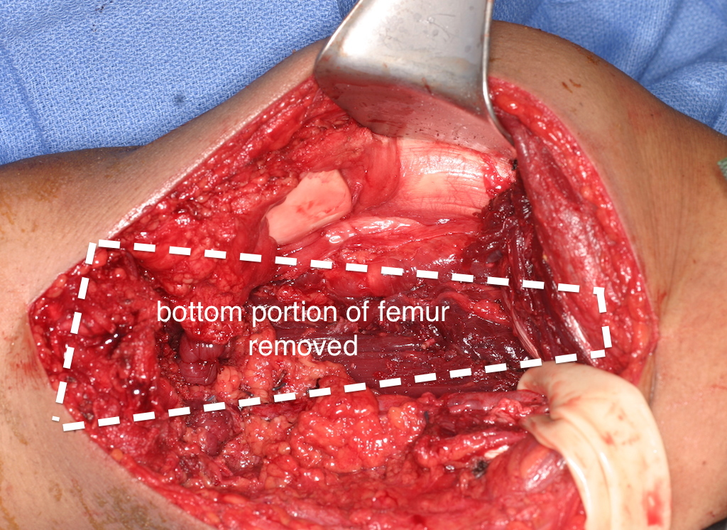 Knee region exposed and distal portion of the femur removed, large rubber band is encircling blood vessels