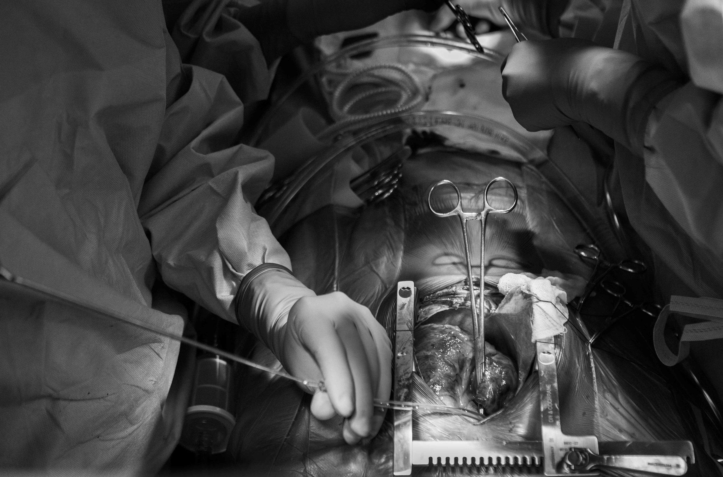 ETHF Lucas operation-10.jpg