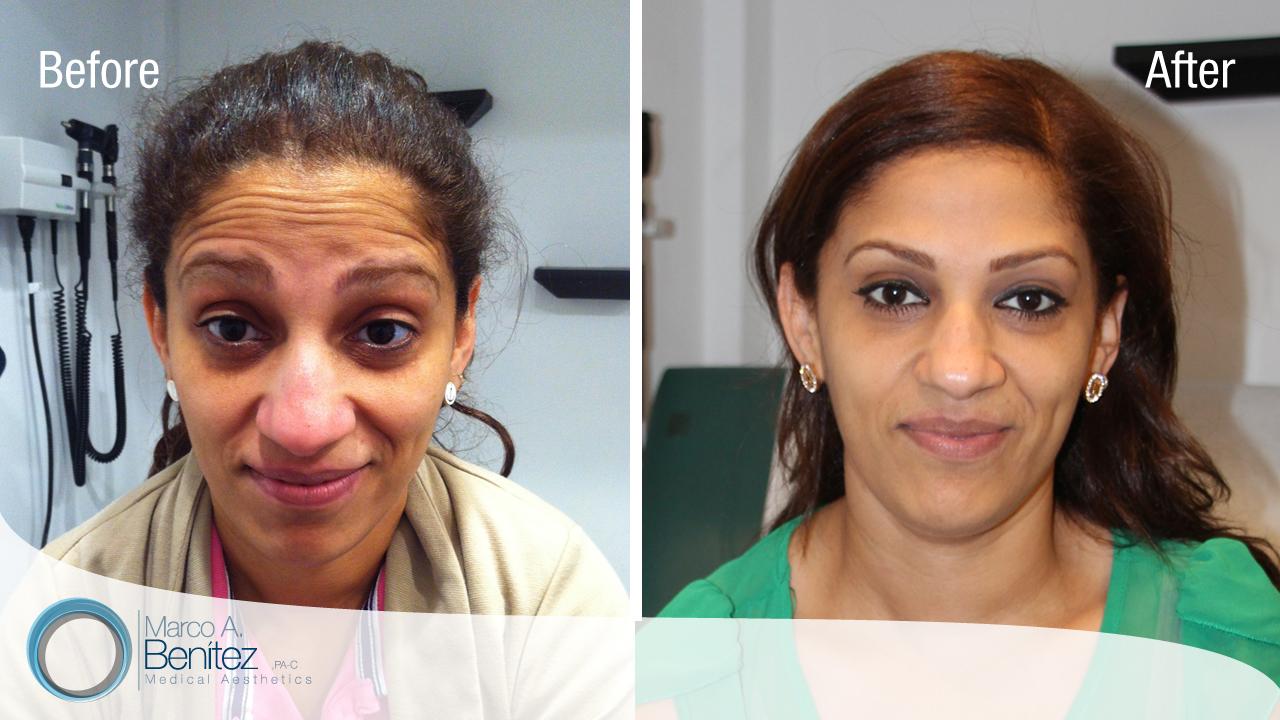 Rejuvenecimiento Facial, Balanceado y No Exagerado