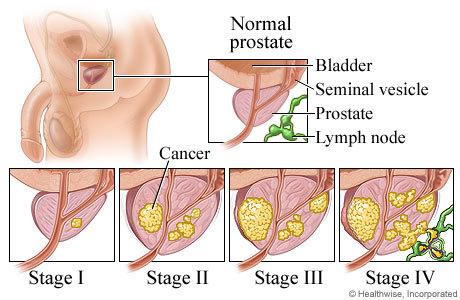dre prostate A prostatitis kezelése a férfiak népi gyógyászatban