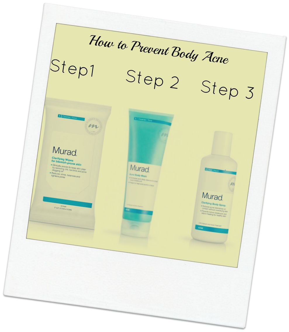 How to Prevent Body Acne