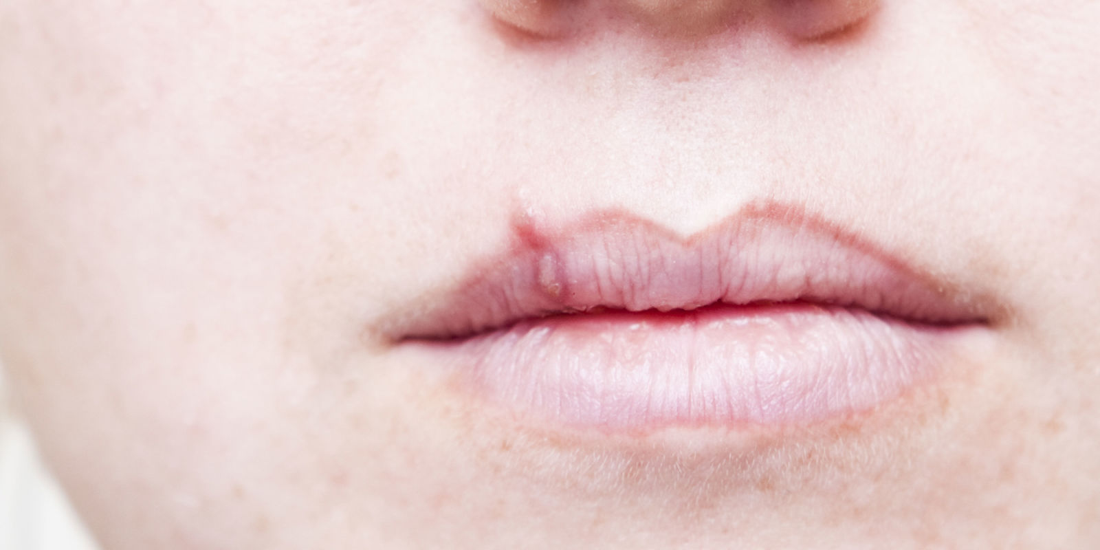 How to Treat Cold Sores.jpg