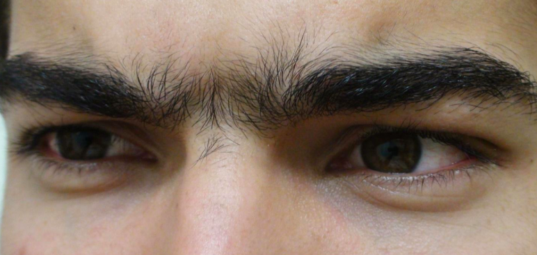 Remove Hair Between Eyebrows.jpg