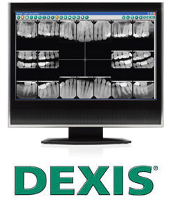 We proudly offer DEXIS digital x-rays, 90% less radiation.