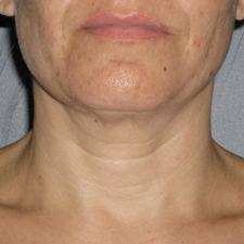 Ultherapy in Cleveland, Ohio | Nonsurgical Skin Tightening, Lifting & Rejuvenation