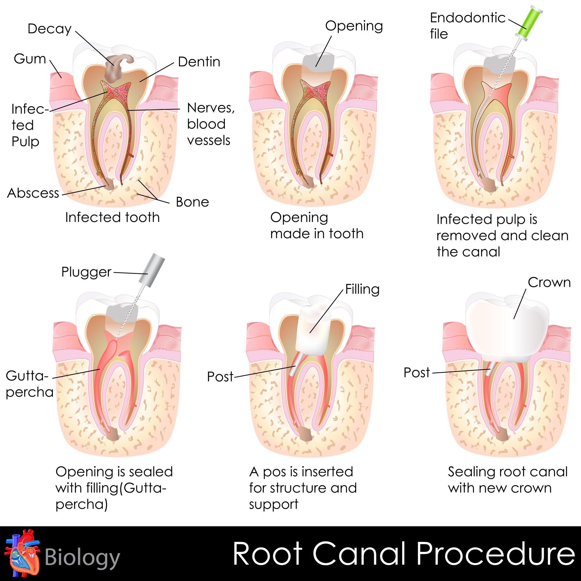stock-illustration-25578650-root-canal-procedure.jpg