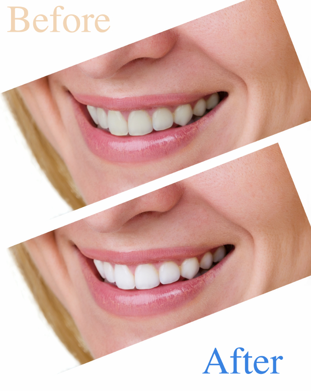 mikula-teeth-whitening.jpg