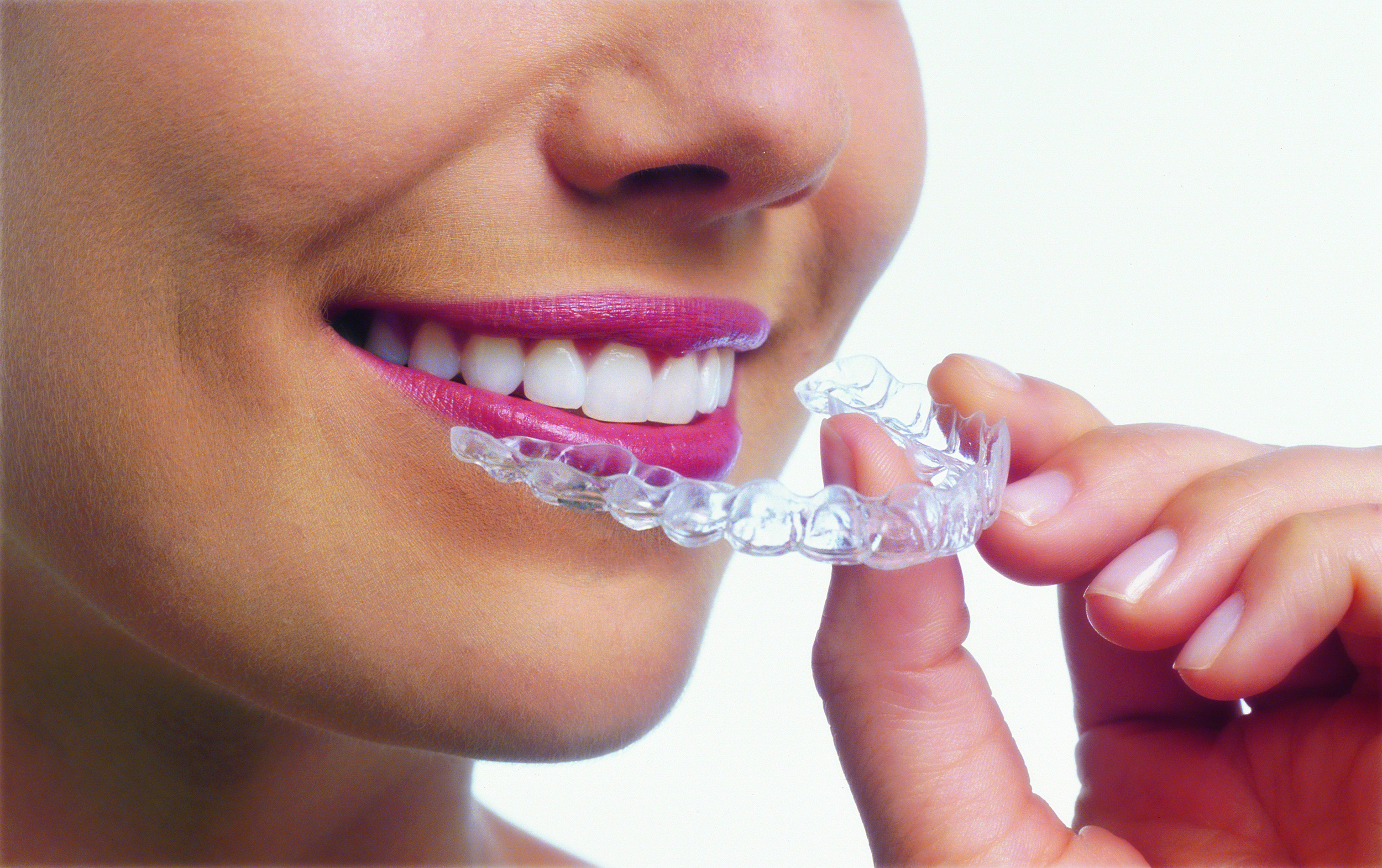 Invisalign aligner trays are made of smooth, comfortable and virtually invisible plastic that you wear over your teeth.