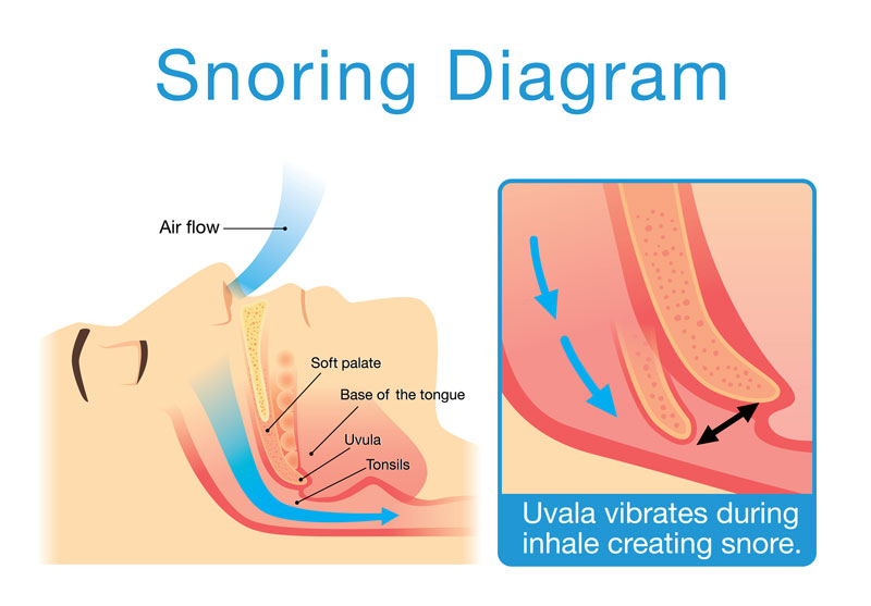 Snoring is the hoarse or harsh sound that occurs when air flows past relaxed tissues in your throat, causing the tissues to vibrate.